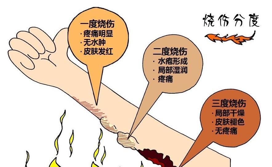 1、迅速把伤员从烧伤环境中抢救出来,阻止持续烧伤,减少烧伤程度。除去烧伤处衣服,动作要温柔,不要强扯强拉,以免碰到伤口处,给伤者带来痛楚。如果是被化学物所烧伤,要用大量清水冲洗,冲净伤处。