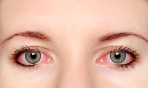 红眼病会不会传染?有哪些常见的传染途径?