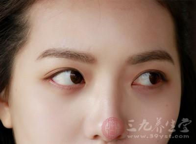 埋线双眼皮的危害 埋线双眼皮的术后注意图片