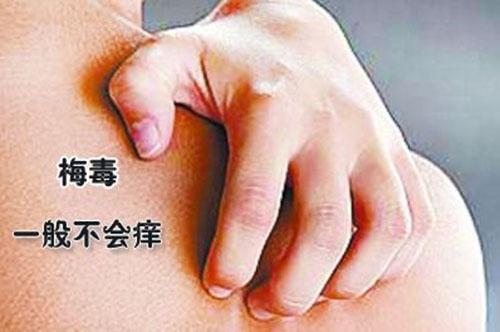 梅毒传染不长眼 7个措施有效预防梅毒