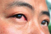 红眼病高发季节,真的看一眼就得红眼病?