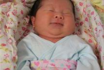 母乳性黄疸的症状表现有哪些 日常需要怎样护理