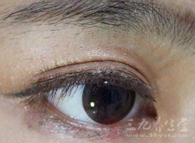 双眼皮全切多少钱 全切双眼皮该注意什么